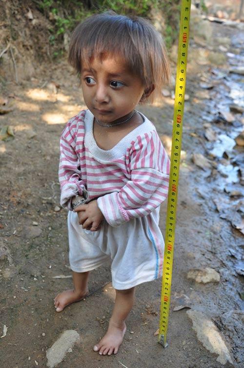 Bé trai 5 tuổi chỉ nặng 3kg, cao nửa mét-1