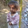 Tin tức - Bé trai 5 tuổi chỉ nặng 3kg, cao nửa mét