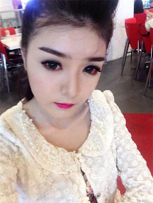 Hot girl Việt viêm giác mạc vì làm đẹp-2