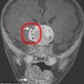 Tin tức - Phát hiện răng mọc trong khối u não của trẻ sơ sinh