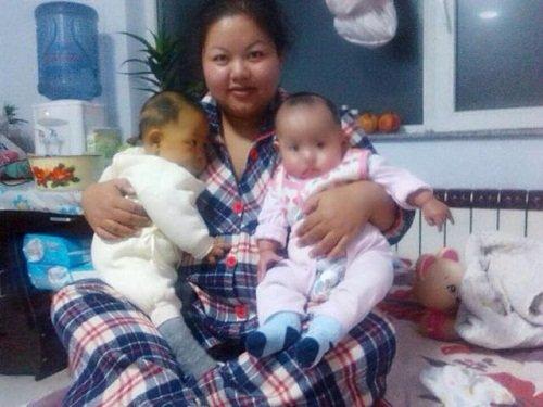 Xúc động: Bố giảm 15kg để hiến gan cứu con-1