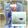 Tin tức - Bé 4 tuổi nuốt phải cây kim trong lúc lấy tủy răng