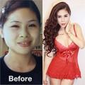 Làm đẹp - Cô gái Hà Nội: 9 năm thẩm mỹ 12 lần