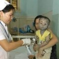 Tin tức - Thủy đậu lan rộng, 20.000 liều vắc xin đang chờ kiểm định