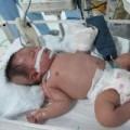 Làm mẹ - Sự thật về bé hoại tử cả bàn tay sau tiêm lao