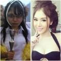 Làm đẹp - Loạt ảnh sau thẩm mỹ của phụ nữ Thái