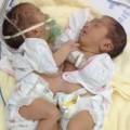 Tin tức - Hai trẻ song sinh dính nhau phần bụng