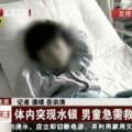 Tin tức - Bé trai 5 tuổi nhiễm độc thủy ngân nặng