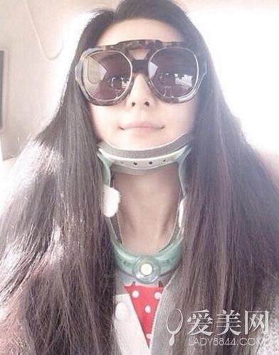 my nhan cbiz dau don gap chan thuong tren phim truong - 2