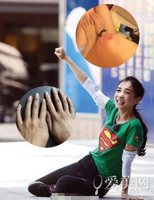 my nhan cbiz dau don gap chan thuong tren phim truong - 3