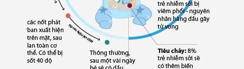 infographic: dau hieu tre bi benh soi va cach dieu tri - 4