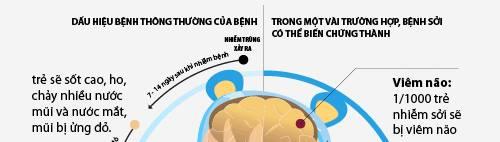 infographic: dau hieu tre bi benh soi va cach dieu tri - 2
