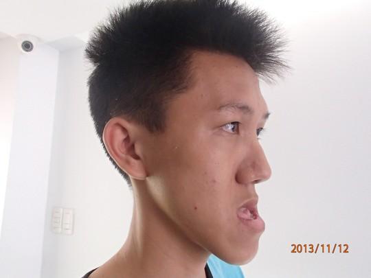 cat ham cuu thanh nien hon 6 nam khong ngam mieng duoc - 1