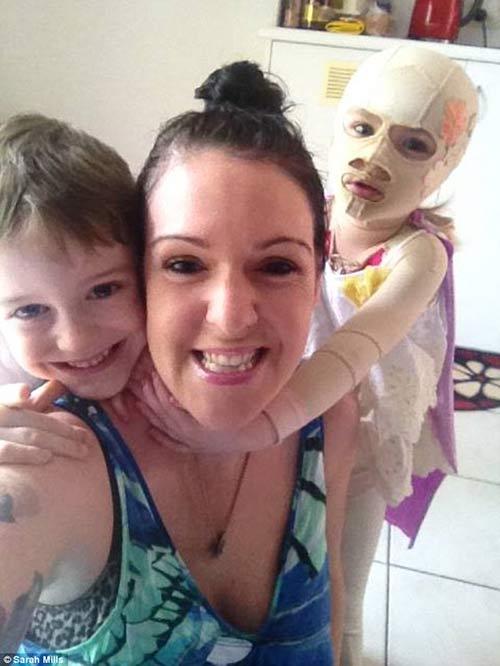 Xót xa bé 2 tuổi cứ ra nắng là bị nổ da đau đớn-5