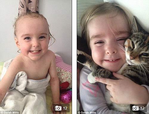 Xót xa bé 2 tuổi cứ ra nắng là bị nổ da đau đớn-2