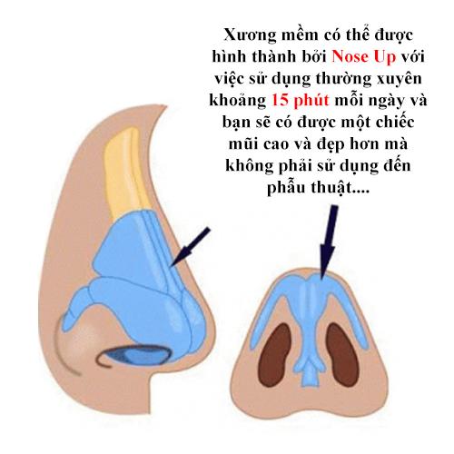 """chi em lai """"ban loan"""" voi kep silicon nang mui kieu moi - 3"""
