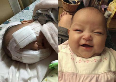 Xót thương bé gái 8 tháng tuổi bị hỏng hai mắt vì ung thư-1