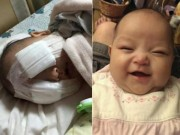 Y tế - Xót thương bé gái 8 tháng tuổi bị hỏng hai mắt vì ung thư