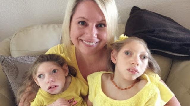 Cảm động tình yêu của người mẹ Mỹ với 2 con teo não-1