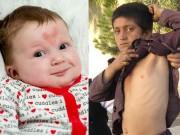 Làm mẹ - Ly kì chuyện những em bé mang vết bớt khó tin trên người
