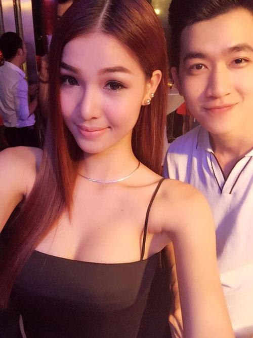 nhan sac ky han thay doi ngoan muc sau khi tham my - 8