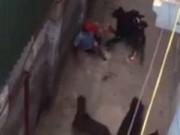 Tin tức - 4 con chó Tây hung hãn cắn chủ qua lời kể nhân chứng