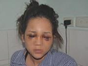 Tin tức - Cô gái bị bạn trai là thiếu uý công an đánh chấn thương sọ não