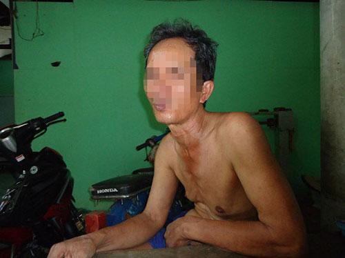 "phat hien hang loat nguoi ""bong dung"" nhiem hiv - 1"