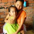 Tin tức - Phụ huynh tố cô giáo đánh bầm mắt bé mầm non