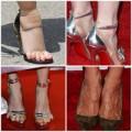 Thời trang - Nghẹt thở nhìn Sao 'tra tấn' bàn chân