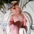 Tin tức - Bé trai 9 tháng tuổi có trái tim nằm bên phải