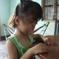Tin tức - Bé gái 4 tuổi mang khuôn mặt bà lão
