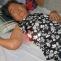 Tin tức - Cuộc đời chìm nổi của cụ bà 27 năm mang thai đá