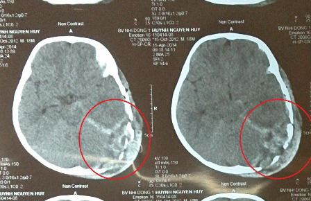 Bị ti vi đè vỡ sọ, bé 2 tuổi tử vong-1