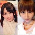 Làm đẹp - Cô gái Nhật thành 'dị nhân' vì độn cằm