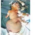 Tin tức - Mổ khối u khổng lồ ở trẻ 6 ngày tuổi