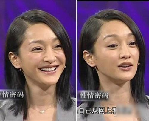 chau tan xuong sac tham hai du 'dao keo'? - 4