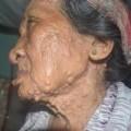 Tin tức - Đắng lòng cụ bà mù cô độc với căn bệnh 'lạ'