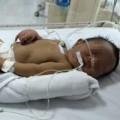 Tin tức - Trẻ sơ sinh suýt chết vì bất đồng nhóm máu với mẹ