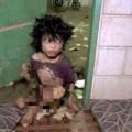 Tin tức - Sốc: Cậu bé 15 tuổi gầy trơ xương vì bị mẹ bỏ đói