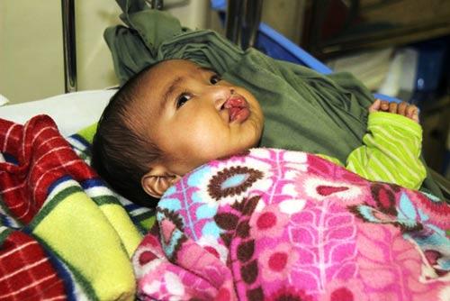 Xót xa bé trai bị tật, mất mẹ khi mới lọt lòng-2