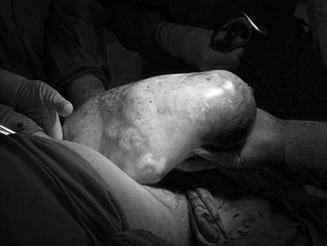 10 khoảnh khắc hiếm gặp: Bé sinh ra nằm trong bọc ối