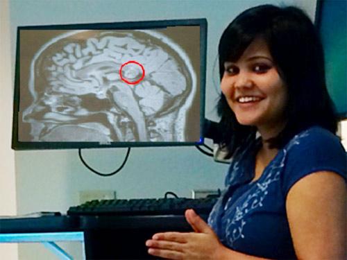 soc: bào thai ký sinh trong não chi em song sinh - 1