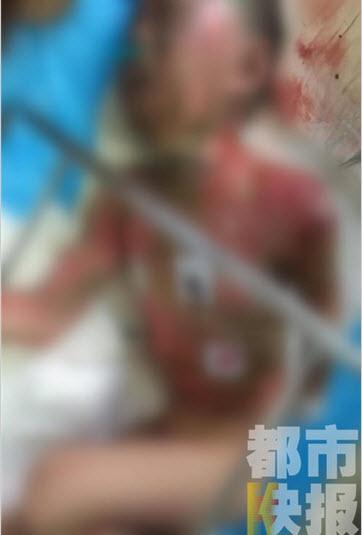TQ: Bé trai đi tiểu bên đường bị điện giật cháy người-3