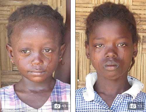 Trẻ mồ côi vì dịch Ebola bán thân để kiếm ăn qua ngày - 2