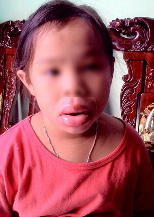 Môi bé gái biến dạng vì ngậm đồ chơi Trung Quốc-1