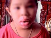 Tin trong nước - Môi bé gái biến dạng vì ngậm đồ chơi Trung Quốc
