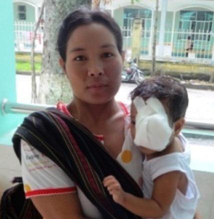 hoàn cảnh thuong tam của cháu bé bị u mát lòi - 3