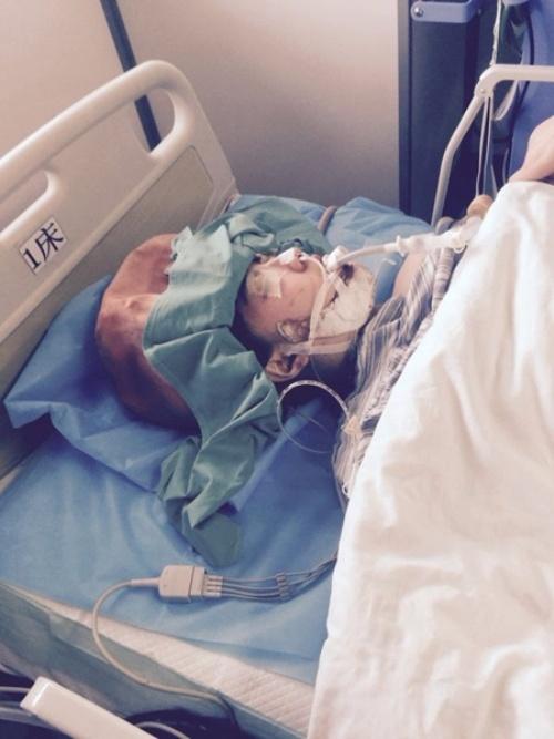 Thạc sỹ xinh đẹp bị biến chứng động kinh vì gọt hàm-3