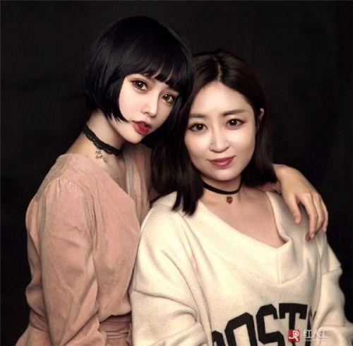 cong dong mang xon xao vi bup be song sinh nam 1995 - 7